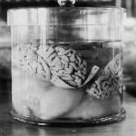 The Brain And Creativity – More Pieces Of The Puzzle